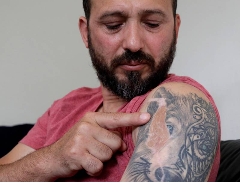 """In this Tuesday, Feb. 25, 2020, photo, Al Noor mosque shooting survivor Temel Atacocugu points to the scar of a bullet wound in his arm during an interview at his home in Christchurch, New Zealand. When the gunman walked into the mosque, Atacocugu was kneeling for Friday prayers. He looked up into the man's face, thinking he was a police officer because of his paramilitary outfit. Time slowed. Temel saw a puff of smoke come from the raised gun, felt a bullet smash into his teeth, and thought: """"Oh, my God, I'm dying."""" (AP Photo/Mark Baker)"""